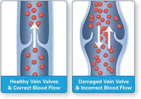 06_Healthy_vs_Diseased_Vein_Illustration
